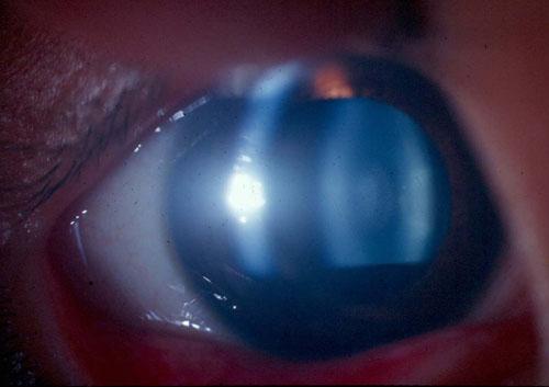 corticaal cataract