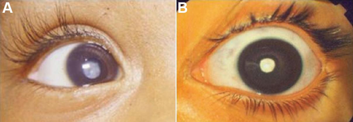 Zonular Cataract Image...