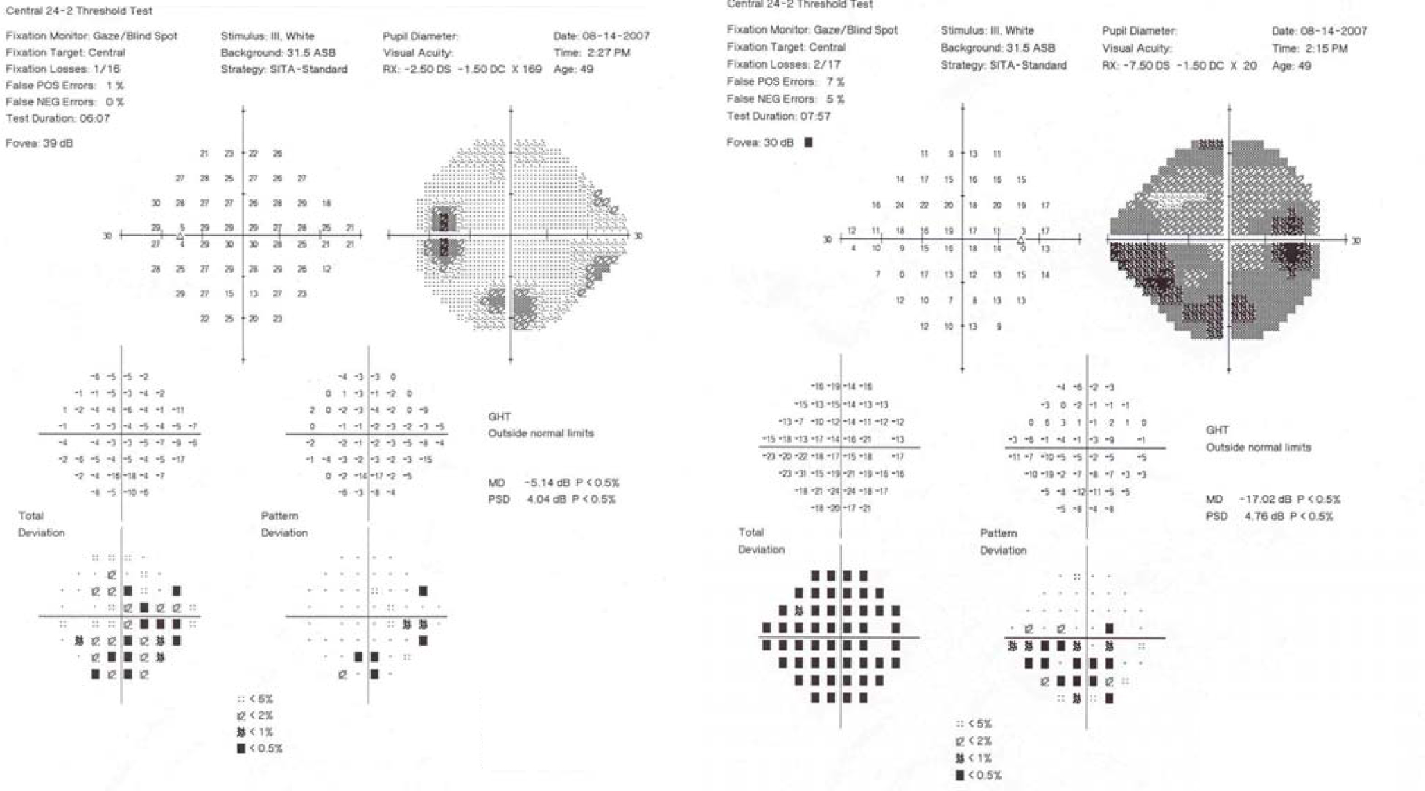 Molecular vision wallace mol vis 2014 201174 1181 figure 7 humphrey visual fields 242 sita standard of subject 3 indicate advanced visual field loss in the right eye and an inferior arcuate and superior nasal nvjuhfo Image collections
